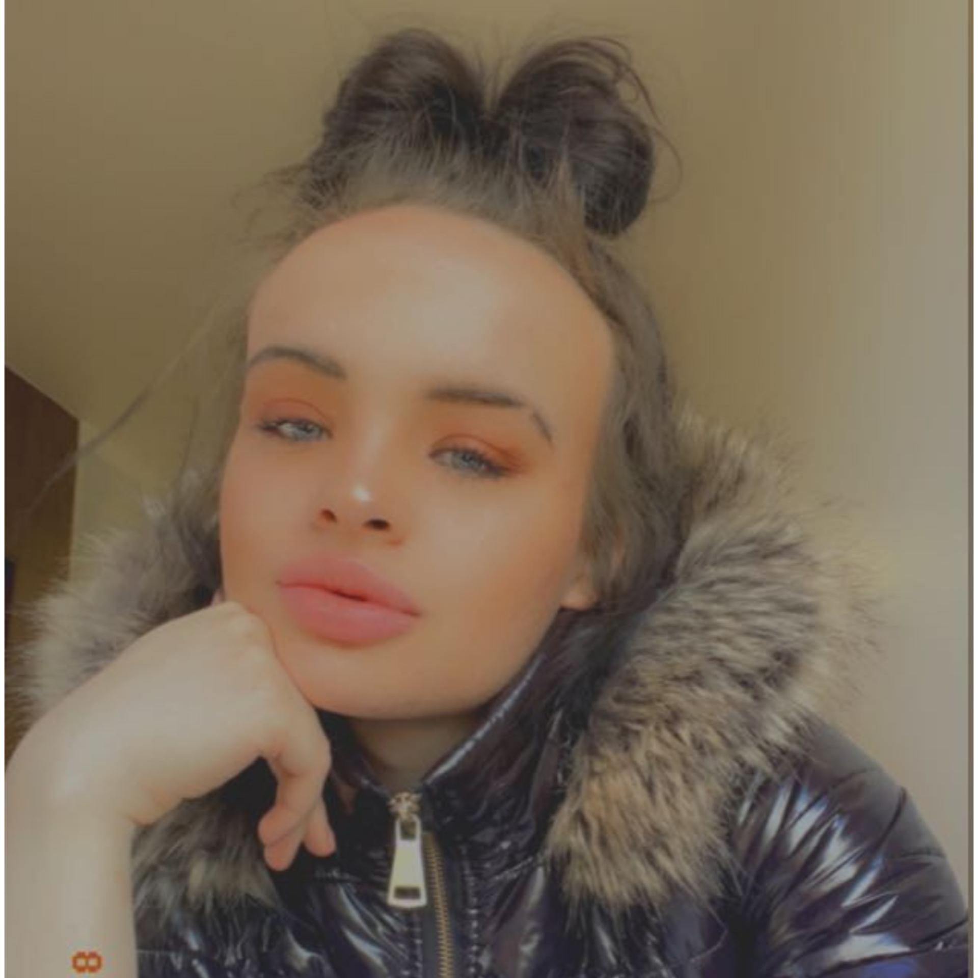 Blackburn Escort Chloe